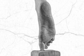 DIABETIC FOOT TREATMENT